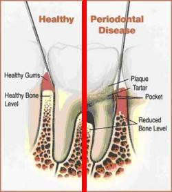 Scaling And Root Planing Dr Michael S Reilly Family Dentistry
